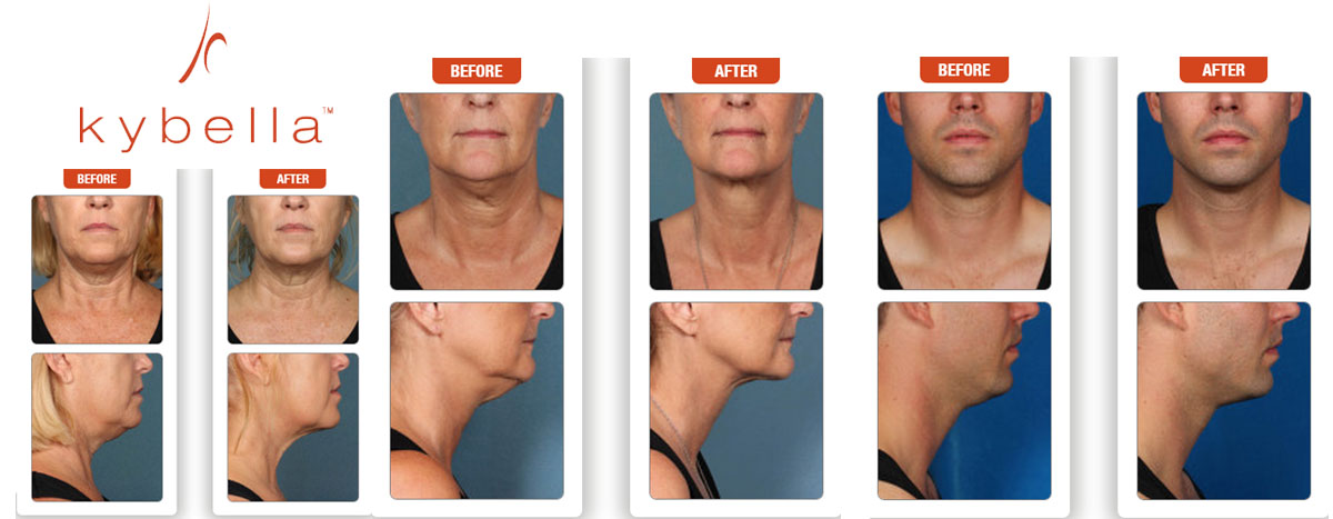 Are you looking for a nonsurgical way to remove double chin? Call 864-223-0505 to learn how Greenwood Plastic Surgery Dr. Ted Vaughn can use Kybella to help you reach your goals.
